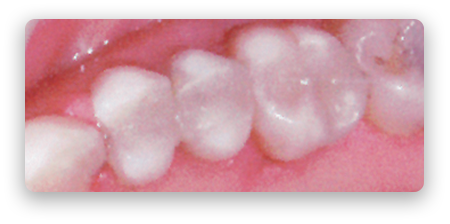 bonded-white-fillings